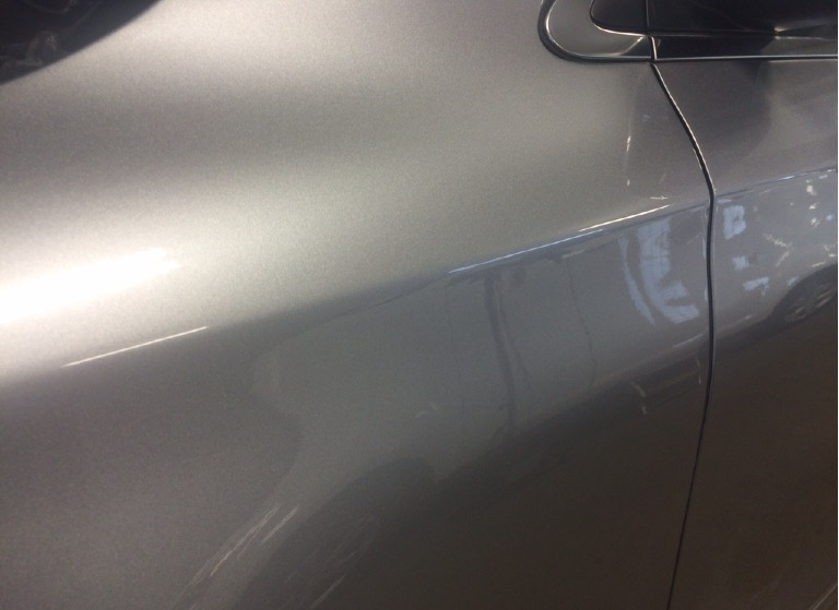 my dent is now gone